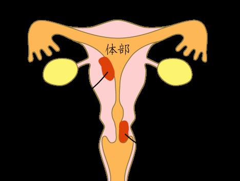 子宮頸がんは子宮の入口の頸部、内側の体部にできるがんです